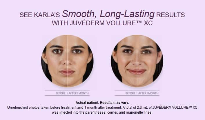 Juvederm Vollure XC plastic surgery results