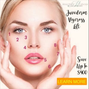 Juvedeerm non-surgical face lift
