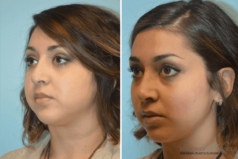 Have thought picture of facial liposuction
