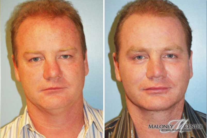 Male plastic surgery patient