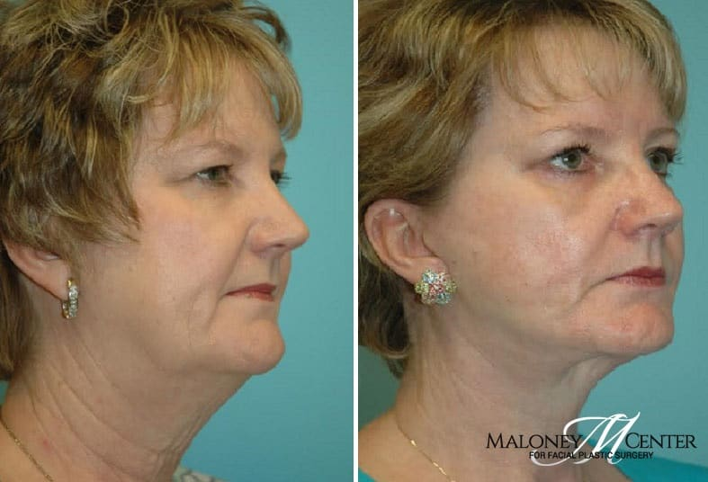 Face & Neck surgery before & after photos