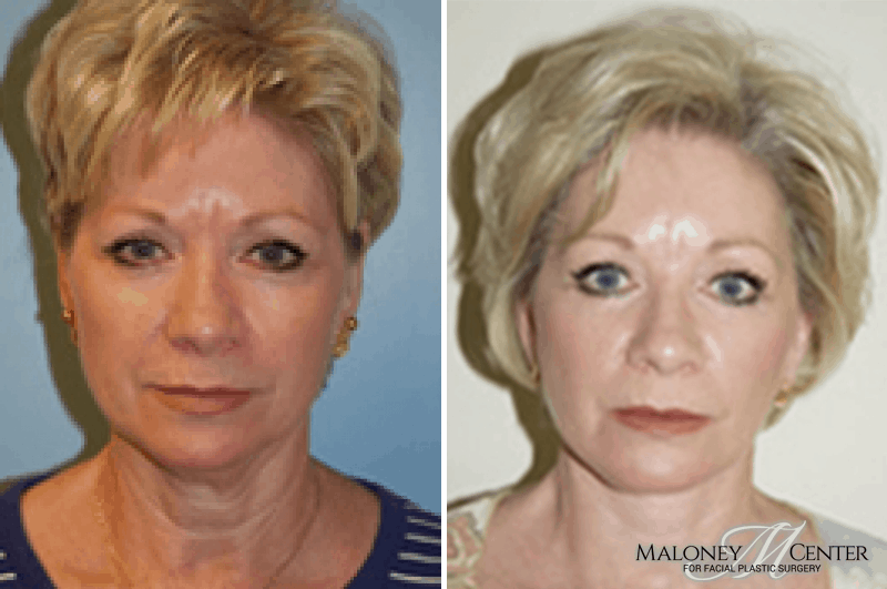 Brow Lift Before And After Photos Brow Lift To Reduce Forehead