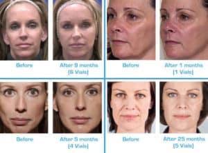 Wär Center for facial cosmetic can say