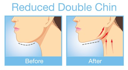 illustration showing a reduced double chin | Kybella