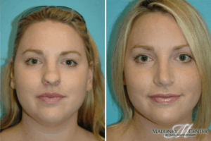 Before and after nose job Atlanta, GA