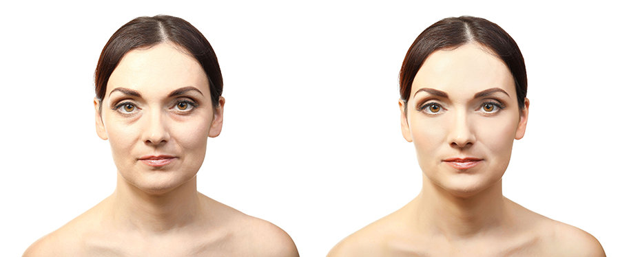 Dr Jess Prischmann - Facial Plastic Surgery Minneapolis