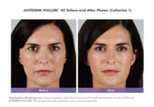 Juvederm Vollure XC before & after