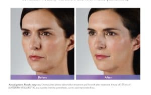 Juvederm fillers at Maloney Center for Facial Plastic Surgery in Atlanta