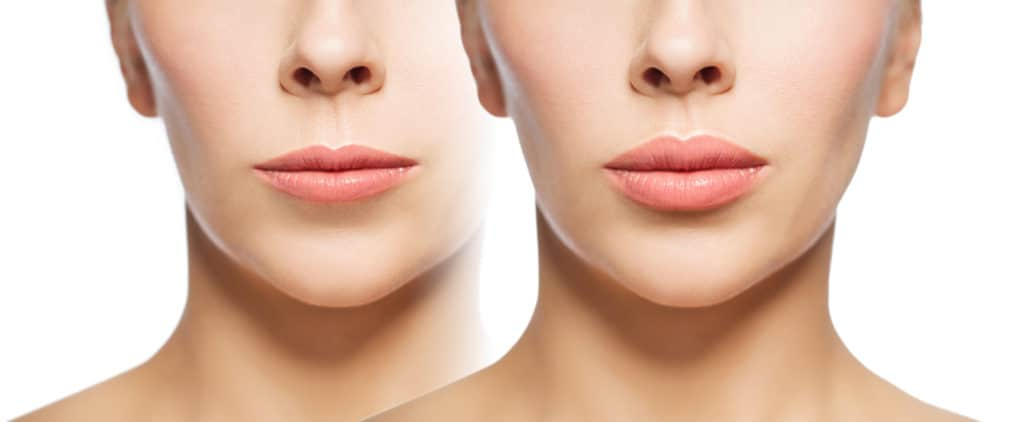 Lip Augmentation, Lip Plumpers